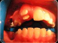 Clínica de especialidades odontológicas solicita odontológas tituladas o en trámite