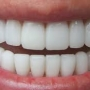 Limpieza Dental y Blanqueamiento
